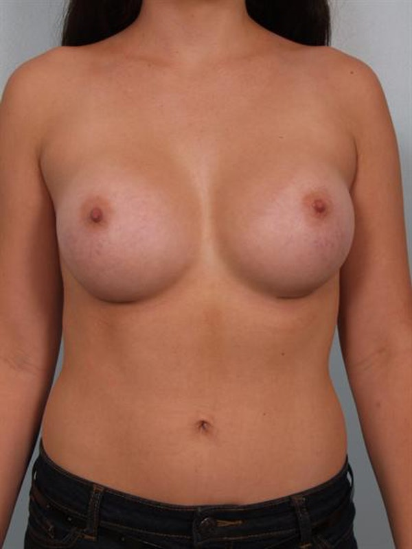 Breast Augmentation Gallery - Patient 1310364 - Image 2