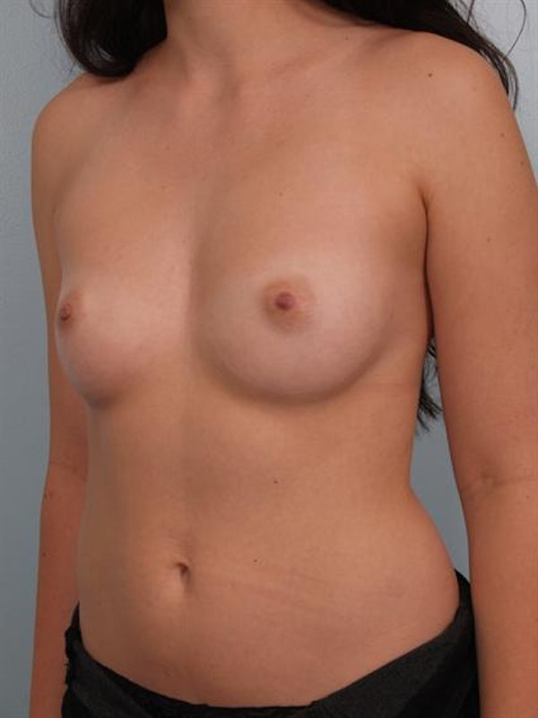 Breast Augmentation Gallery - Patient 1310364 - Image 3