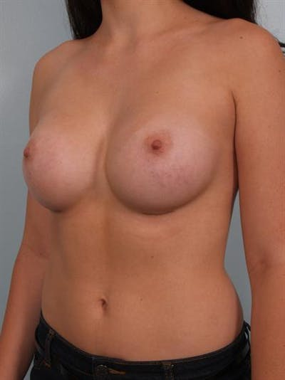 Breast Augmentation Gallery - Patient 1310364 - Image 4