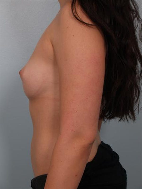 Breast Augmentation Gallery - Patient 1310364 - Image 5