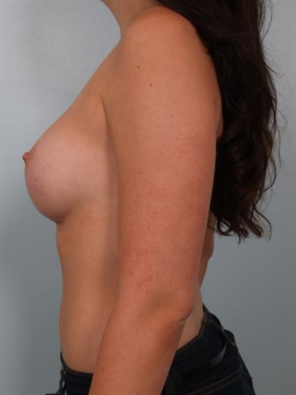 Breast Augmentation Gallery - Patient 1310364 - Image 6