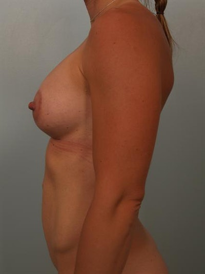 Breast Augmentation Gallery - Patient 1310365 - Image 2