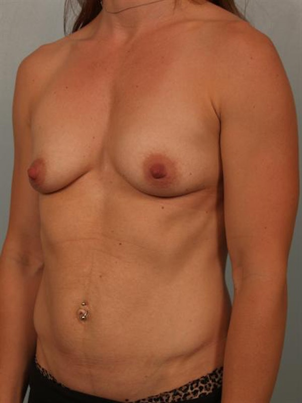 Breast Augmentation Gallery - Patient 1310365 - Image 5