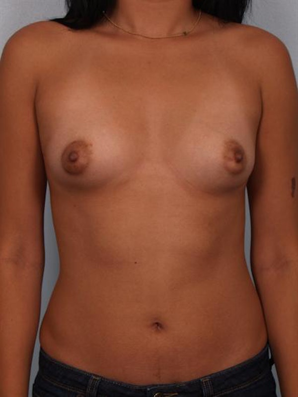 Breast Augmentation Gallery - Patient 1310366 - Image 1