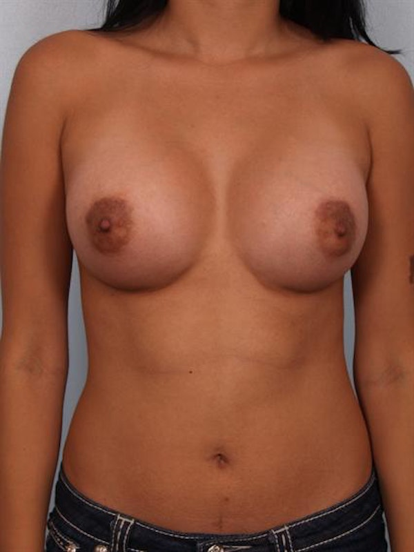 Breast Augmentation Gallery - Patient 1310366 - Image 2