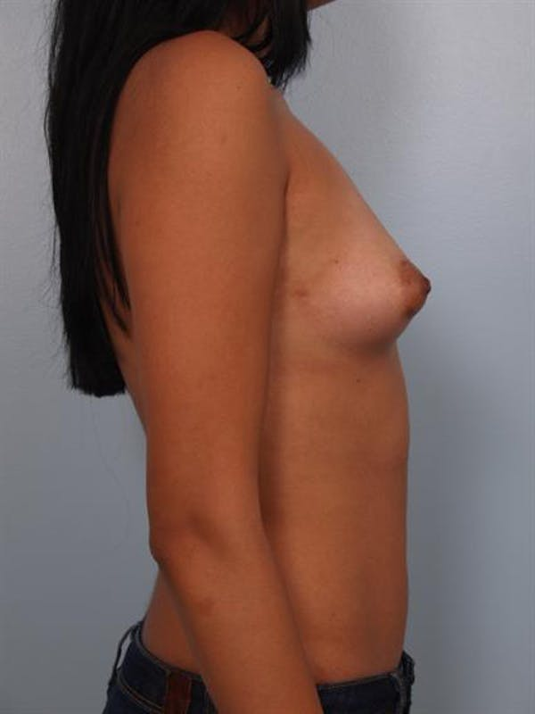 Breast Augmentation Gallery - Patient 1310366 - Image 3