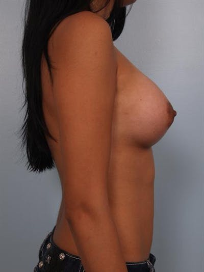Breast Augmentation Gallery - Patient 1310366 - Image 4
