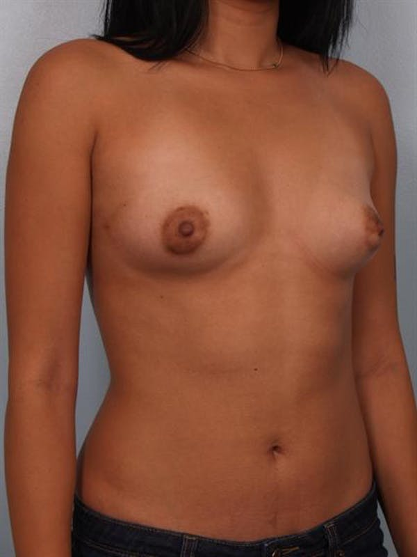 Breast Augmentation Gallery - Patient 1310366 - Image 5