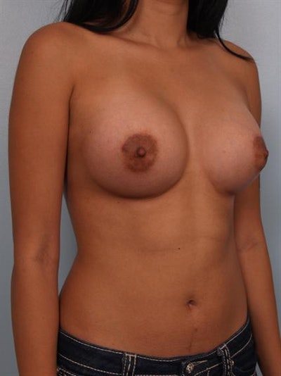 Breast Augmentation Gallery - Patient 1310366 - Image 6