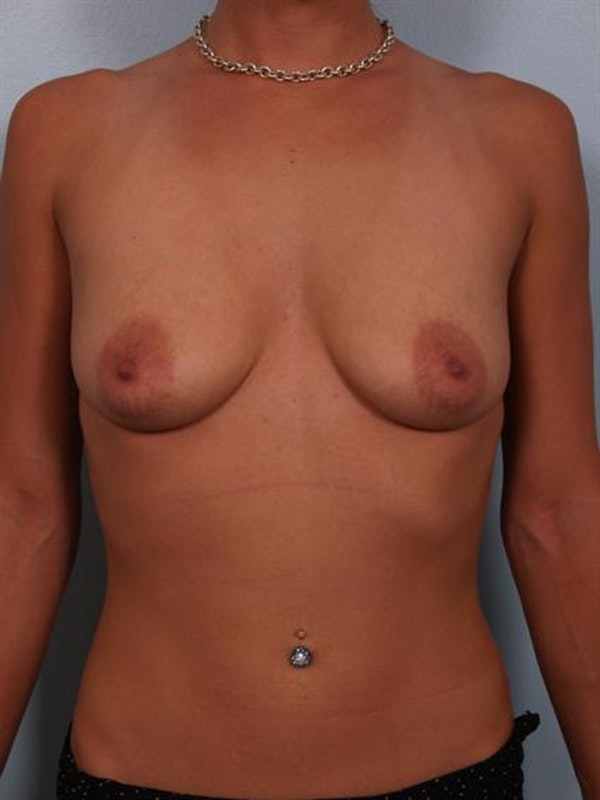 Breast Augmentation Gallery - Patient 1310367 - Image 1
