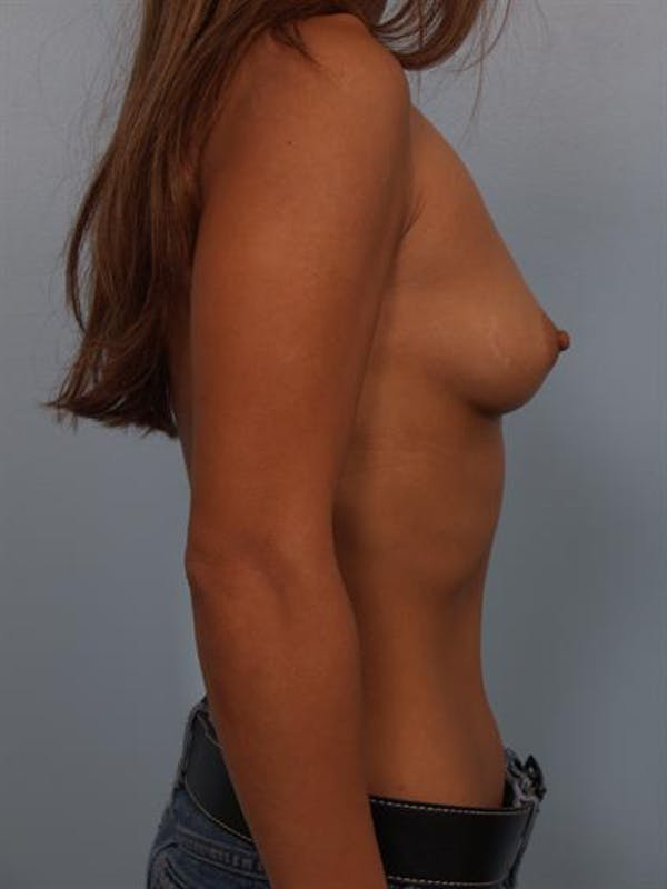Breast Augmentation Gallery - Patient 1310370 - Image 1