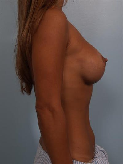 Breast Augmentation Gallery - Patient 1310370 - Image 2