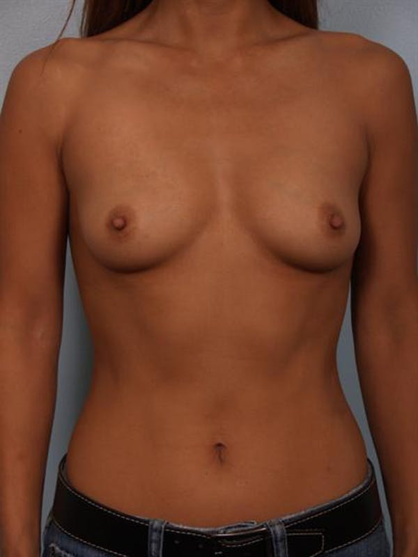 Breast Augmentation Gallery - Patient 1310370 - Image 3