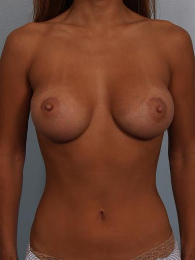 Breast Augmentation Gallery - Patient 1310370 - Image 4
