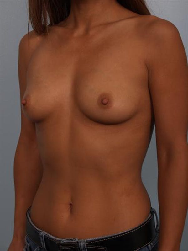 Breast Augmentation Gallery - Patient 1310370 - Image 5