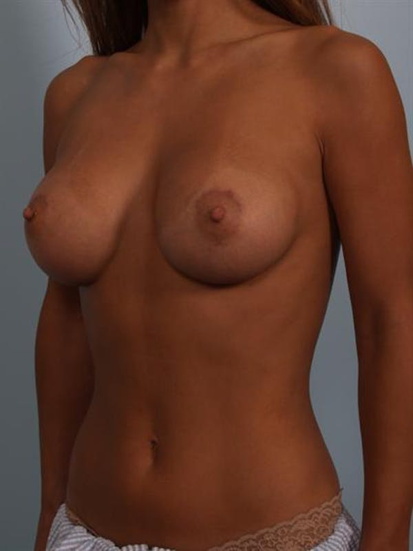 Breast Augmentation Gallery - Patient 1310370 - Image 6