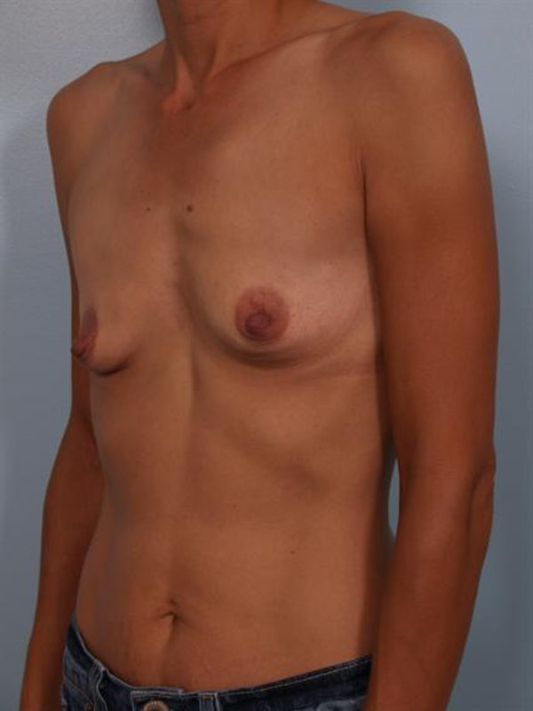 Breast Augmentation Gallery - Patient 1310371 - Image 1