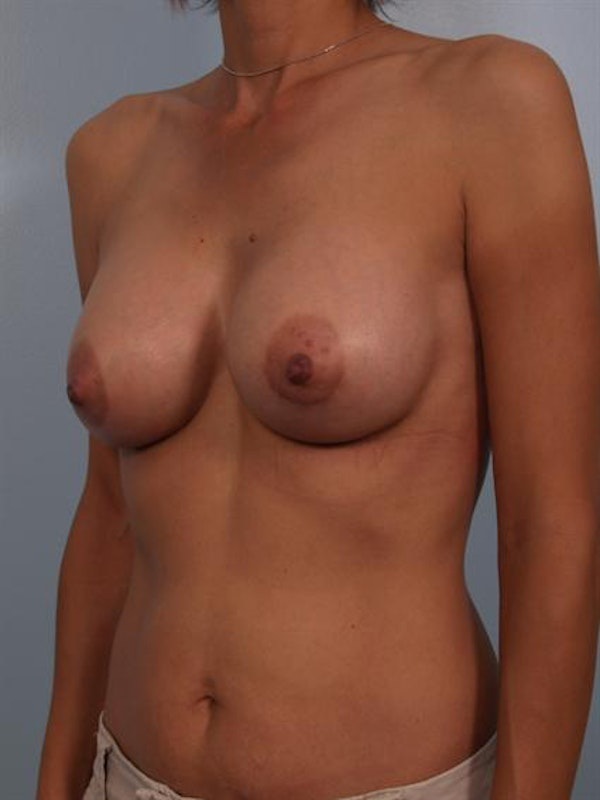 Breast Augmentation Gallery - Patient 1310371 - Image 2