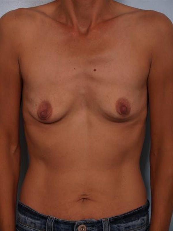 Breast Augmentation Gallery - Patient 1310371 - Image 3