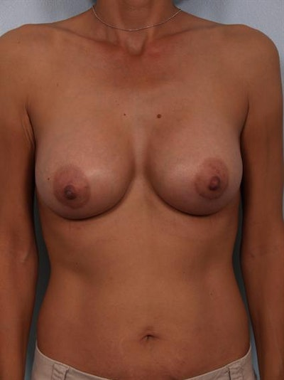Breast Augmentation Gallery - Patient 1310371 - Image 4