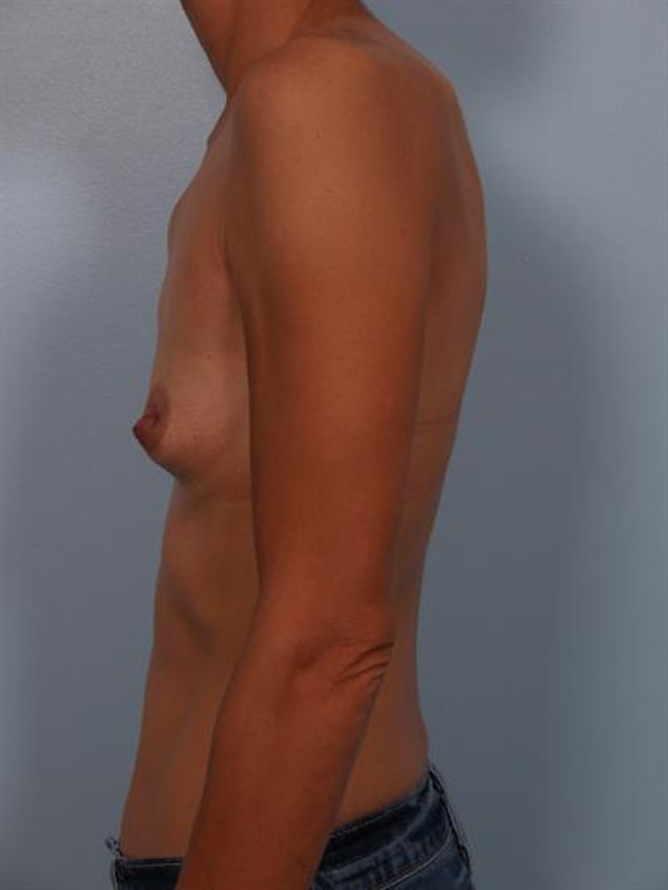 Breast Augmentation Gallery - Patient 1310371 - Image 5