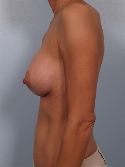 Breast Augmentation Gallery - Patient 1310371 - Image 6