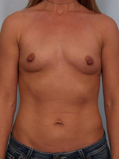 Breast Augmentation Gallery - Patient 1310373 - Image 1