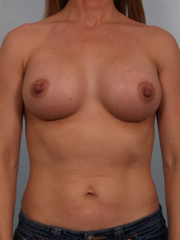Breast Augmentation Gallery - Patient 1310373 - Image 2