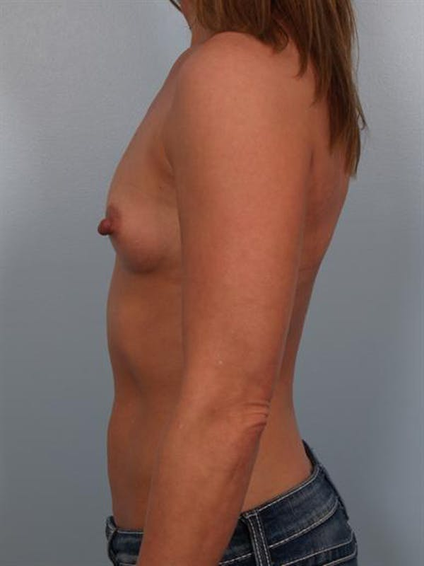 Breast Augmentation Gallery - Patient 1310373 - Image 3