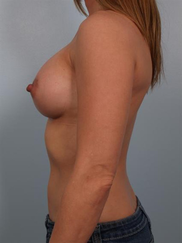 Breast Augmentation Gallery - Patient 1310373 - Image 4