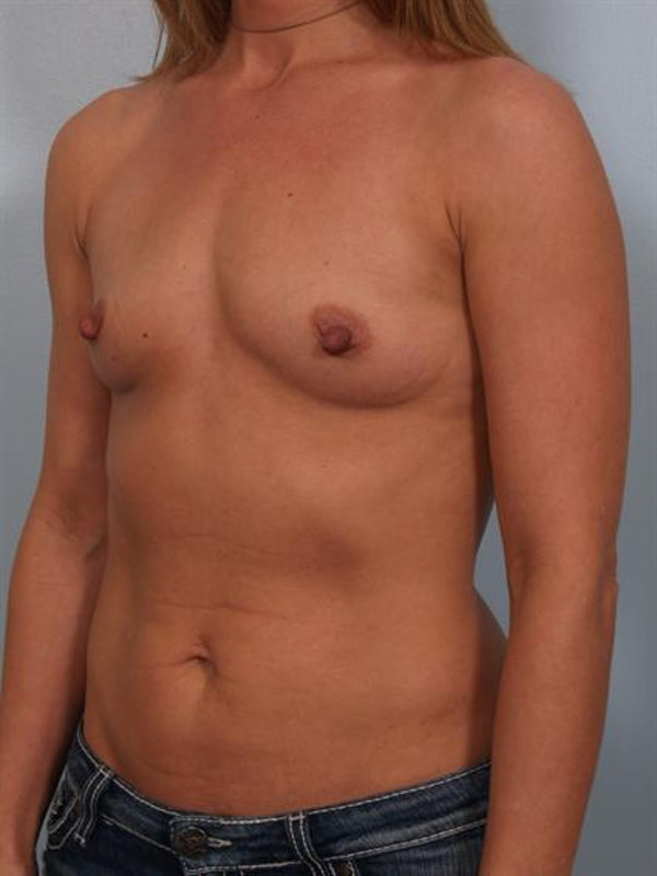 Breast Augmentation Gallery - Patient 1310373 - Image 5
