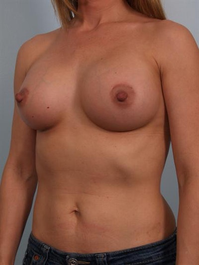 Breast Augmentation Gallery - Patient 1310373 - Image 6
