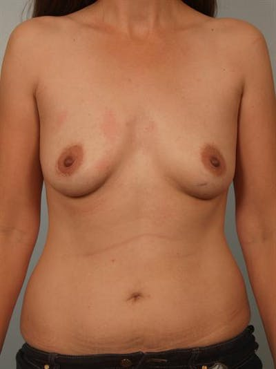 Breast Augmentation Gallery - Patient 1310374 - Image 1