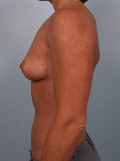 Breast Augmentation Gallery - Patient 1310376 - Image 1