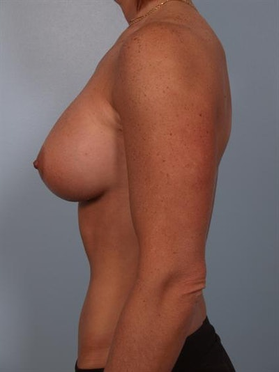 Breast Augmentation Gallery - Patient 1310376 - Image 2