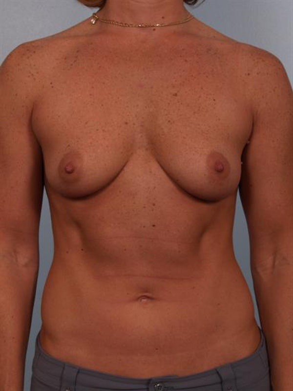 Breast Augmentation Gallery - Patient 1310376 - Image 3
