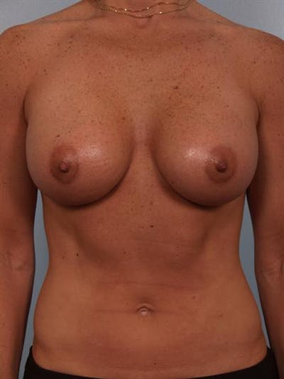 Breast Augmentation Gallery - Patient 1310376 - Image 4