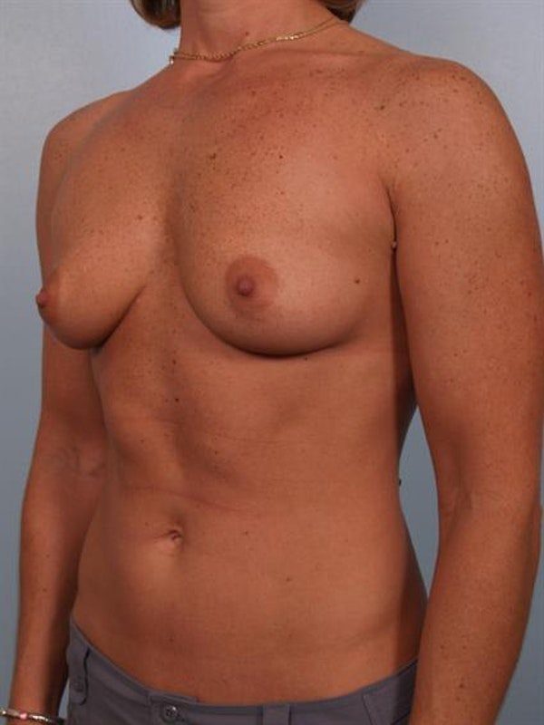 Breast Augmentation Gallery - Patient 1310376 - Image 5