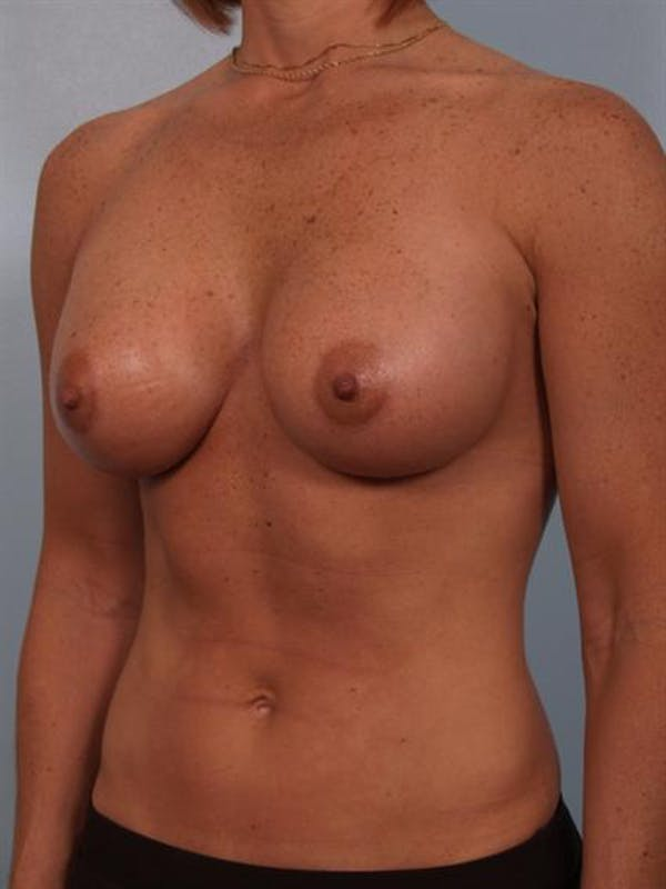 Breast Augmentation Gallery - Patient 1310376 - Image 6