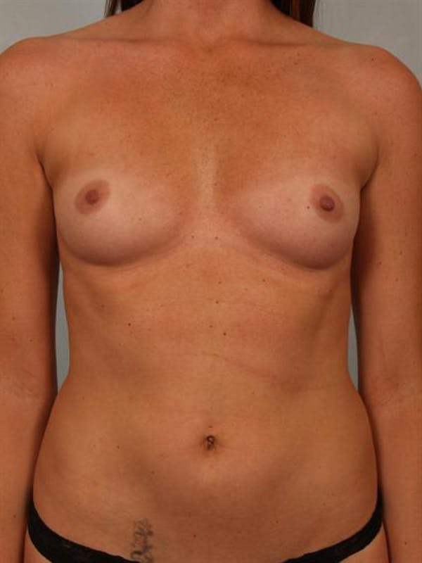 Breast Augmentation Gallery - Patient 1310377 - Image 1