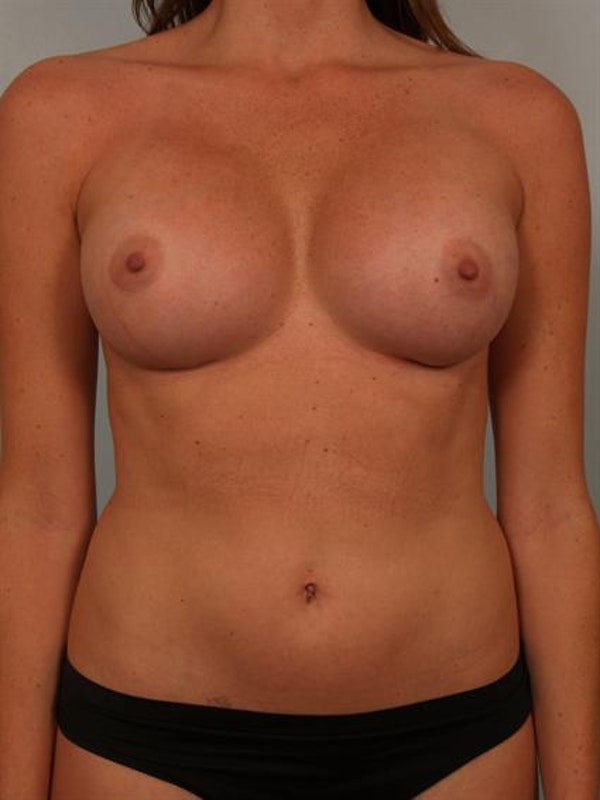 Breast Augmentation Gallery - Patient 1310377 - Image 2