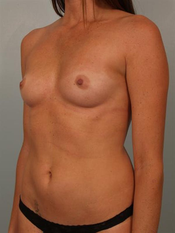 Breast Augmentation Gallery - Patient 1310377 - Image 3