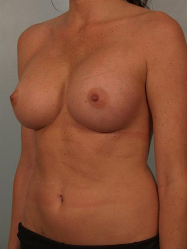 Breast Augmentation Gallery - Patient 1310377 - Image 4