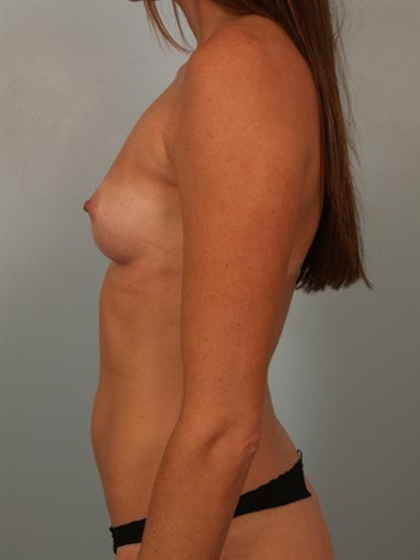 Breast Augmentation Gallery - Patient 1310377 - Image 5