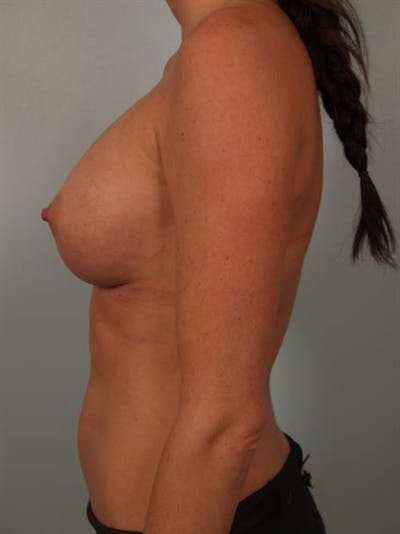 Breast Augmentation Gallery - Patient 1310377 - Image 6