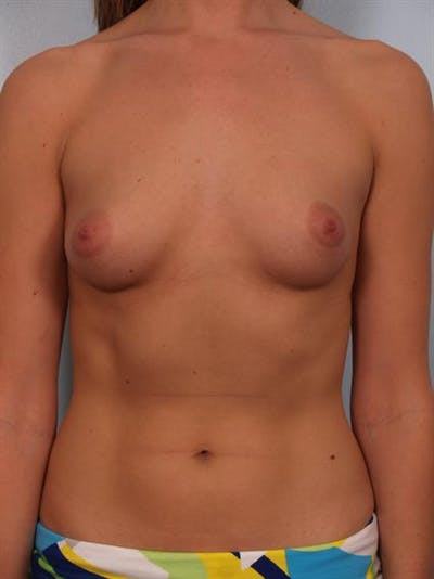 Breast Augmentation Gallery - Patient 1310378 - Image 1