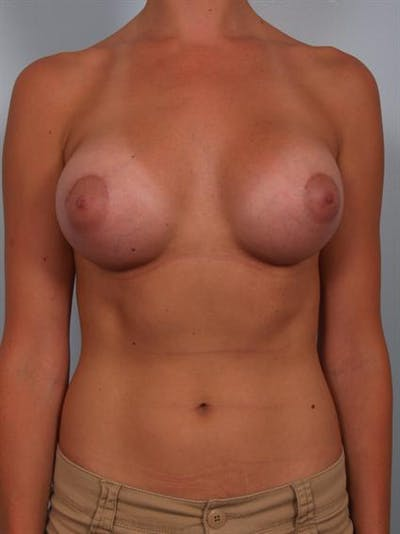 Breast Augmentation Gallery - Patient 1310378 - Image 2