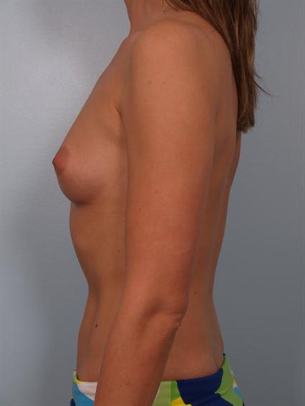 Breast Augmentation Gallery - Patient 1310378 - Image 3