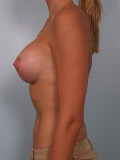 Breast Augmentation Gallery - Patient 1310378 - Image 4