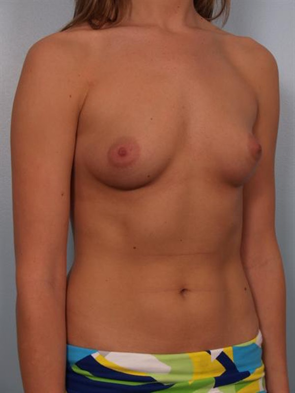 Breast Augmentation Gallery - Patient 1310378 - Image 5